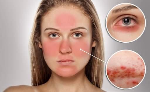 Sử dụng nước hoa hồng hiệu quả cho da nhạy cảm