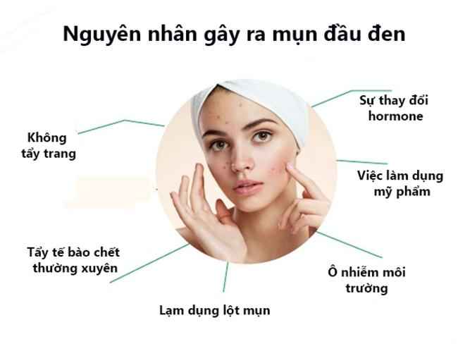 Nguyên nhân gây ra mụn đầu đen ở mũi